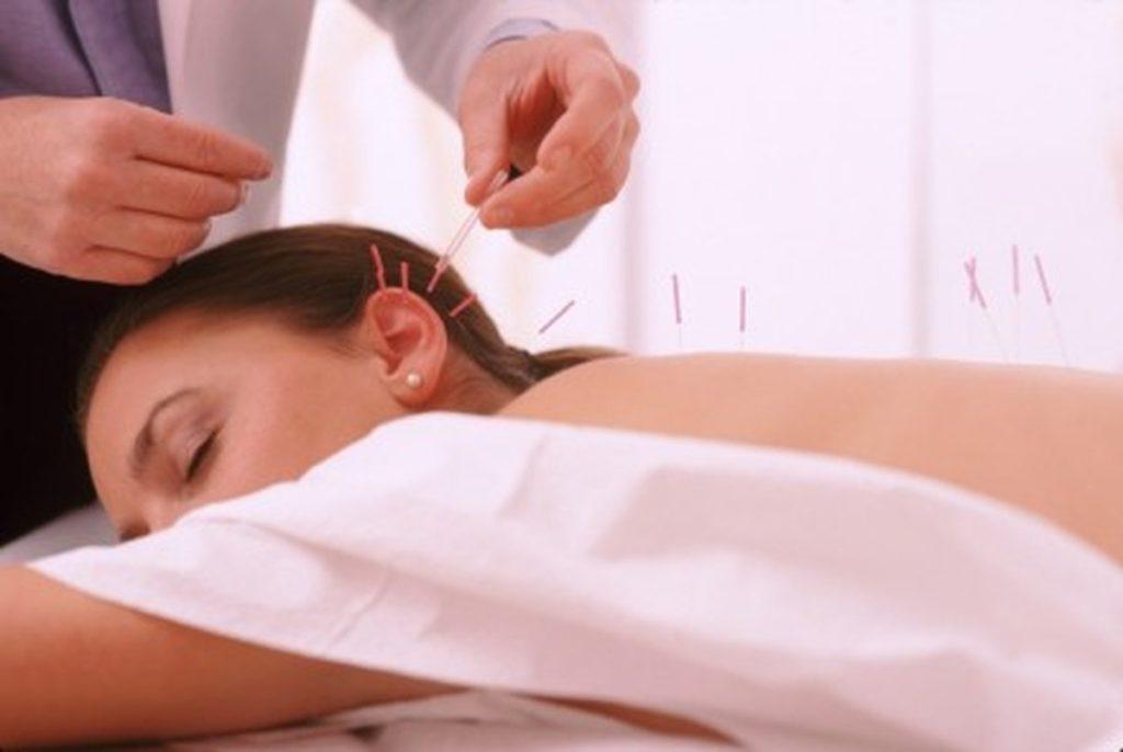 Восточная медицина в наши дни: иглоукалывание