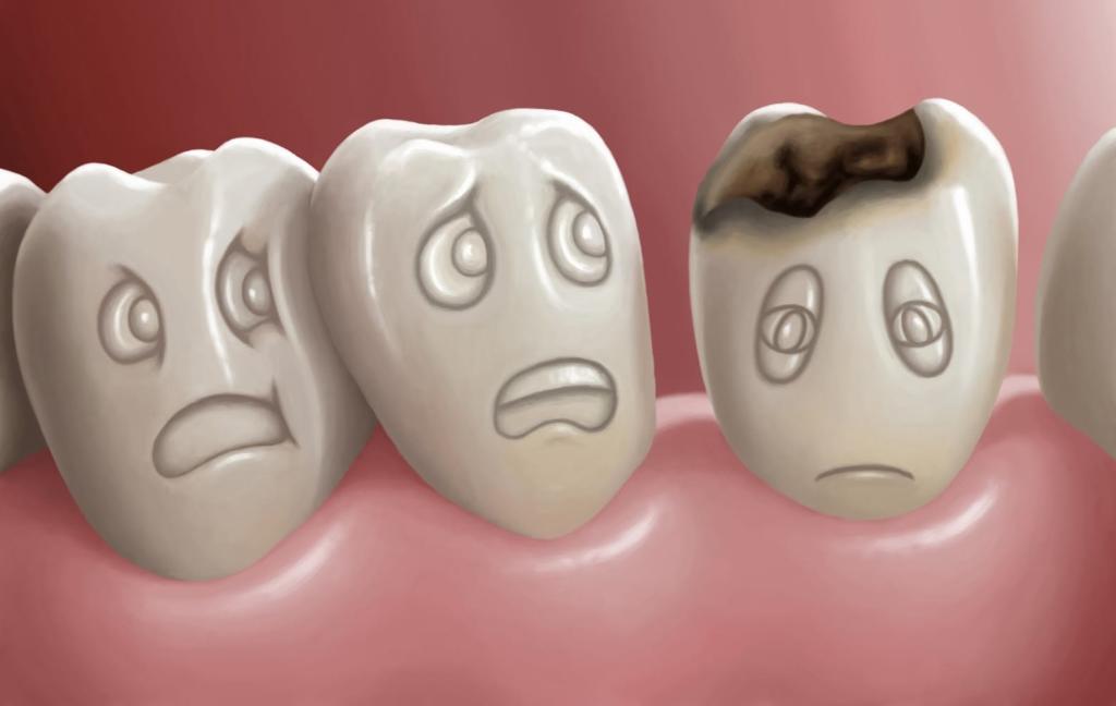 Кариес зубов: лечение, причины, признаки, профилактика