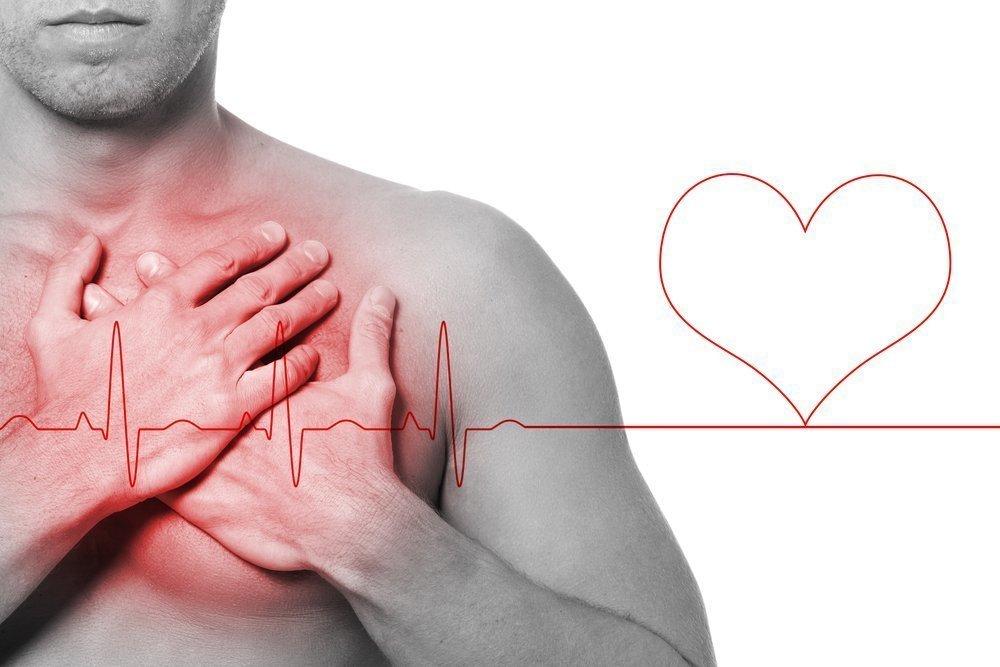 Обширный инфаркт миокарда: причины, симптомы, последствия